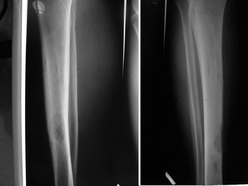 Рис.1 Кистозная перестройка средней трети левой большеберцовой кости