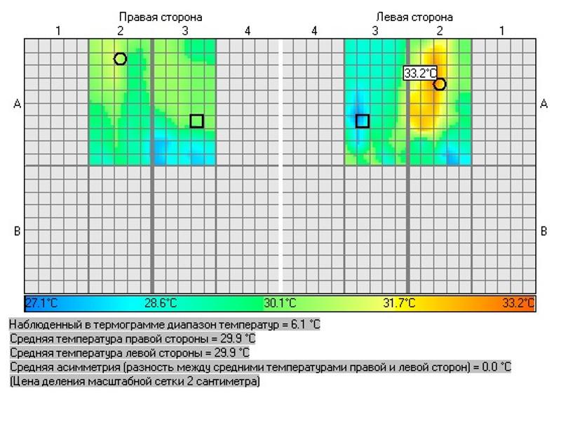 Рис. 4. Термограмма голеней (очаг гипертермии в средней трети левой голени по передней поверхности).
