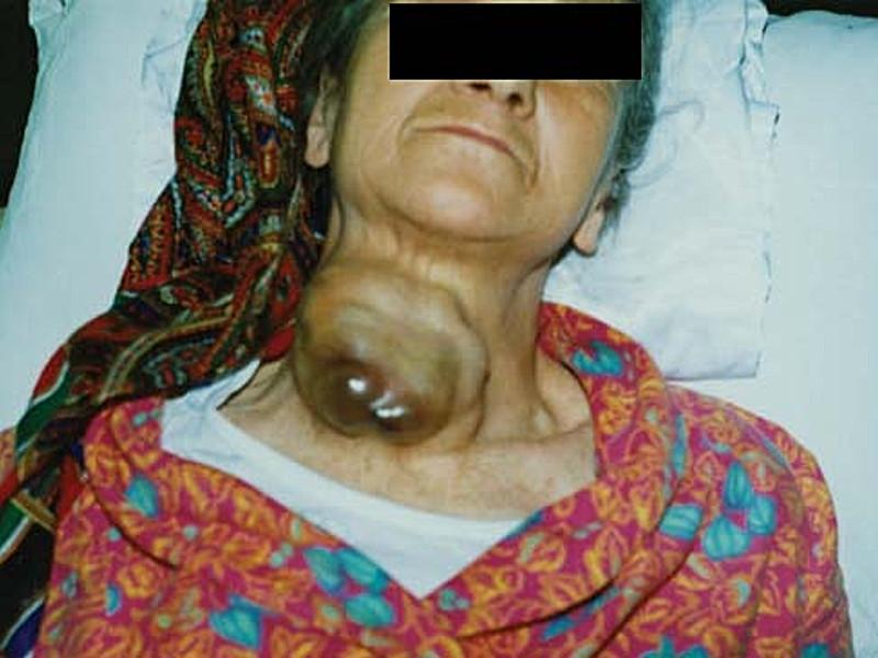Рак щитовидной железы IV стадии