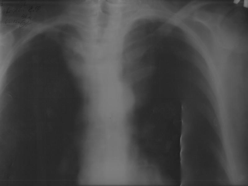 Рентгенография грудной клетки  у пациентки с загрудинным зобом III cтадии