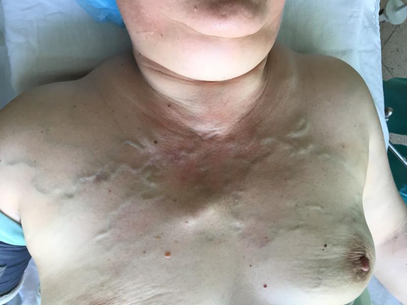 Синдром верхней полой вены при загрудинном зобе III стадии
