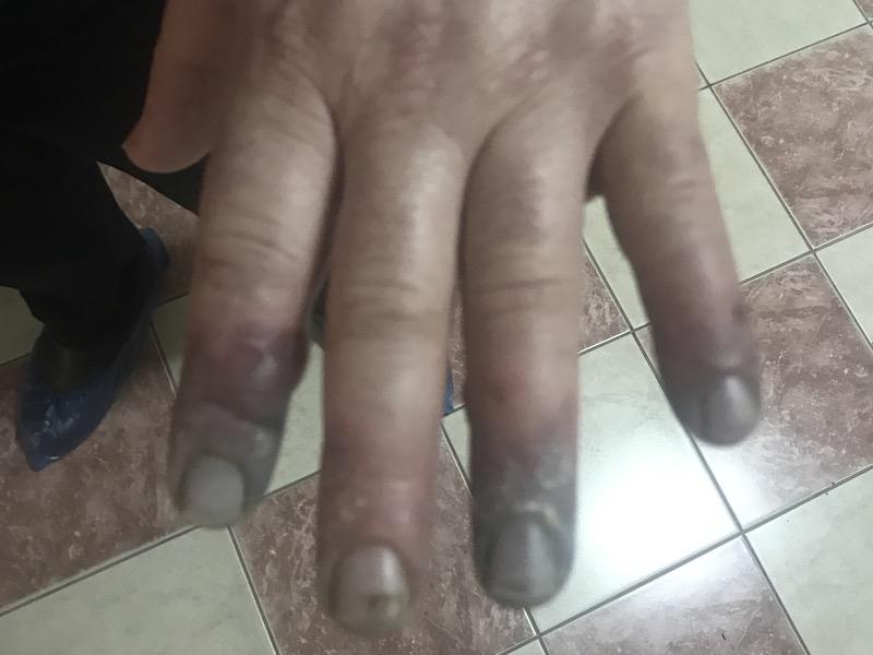 Развивающийся некроз пальцев и дистального отдела кисти