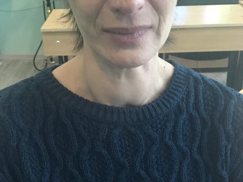 Внешний вид больной с тиреотоксическим зобом до операции